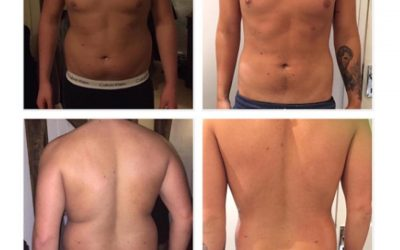 Combination of a healthy diet, exercise, fat freezing and Cavitation Lipo has given this young man a total body transformation.