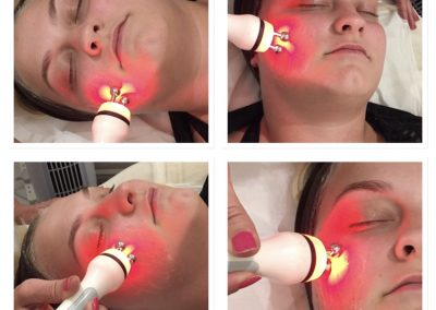 COLLAGEN TIGHTENING FACIAL